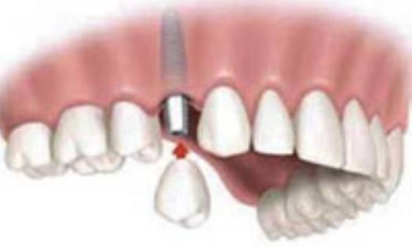 جرم دندان، از پیشگیری تا درمان